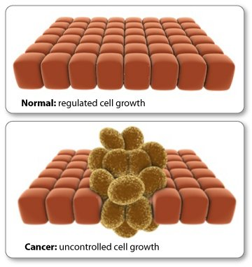 Cancer starts from abnormal growth of cells
