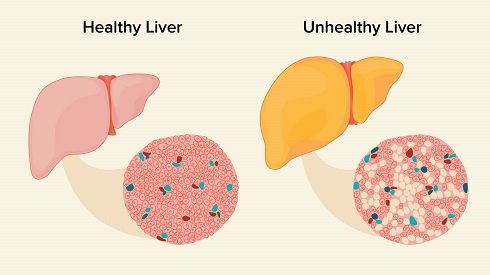 Fatty Liver Disease due to Soft Drinks