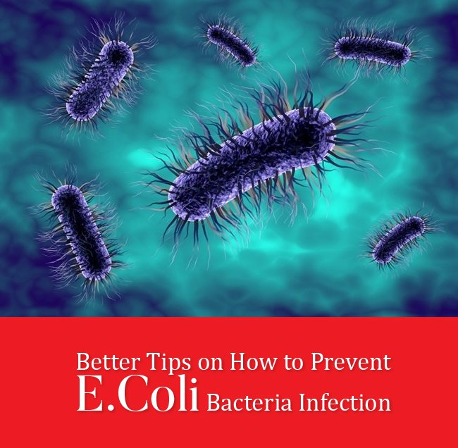 Better Tips on How to Prevent E.Coli Bacteria Infection