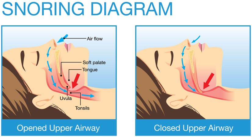 Snoring-Here-are-the-basic-things-to-prevent02