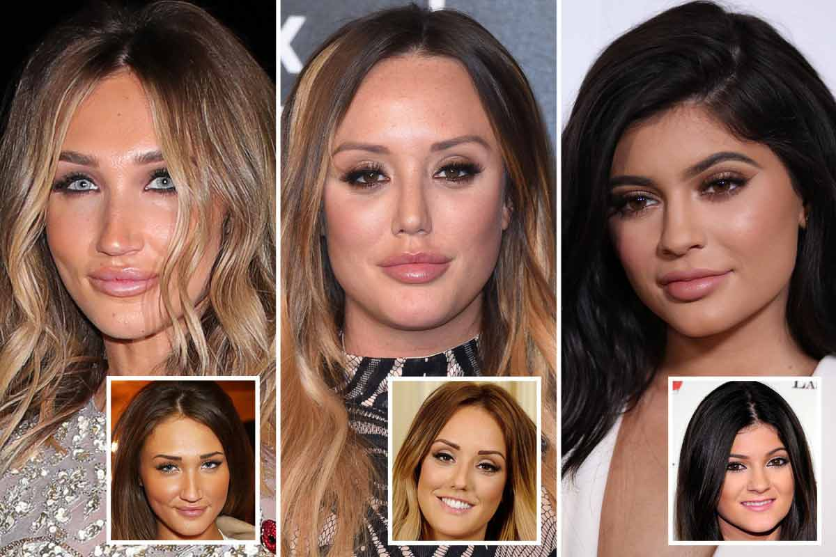 Lip-Fillers-Your-Latest-Trend-002