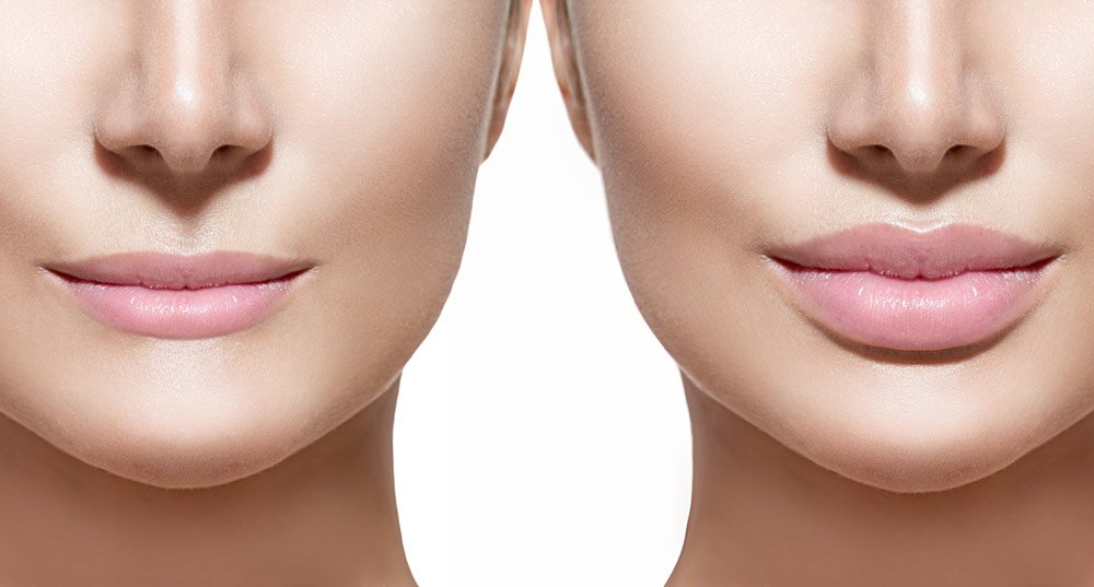 Lip-Fillers-Your-Latest-Trend-003