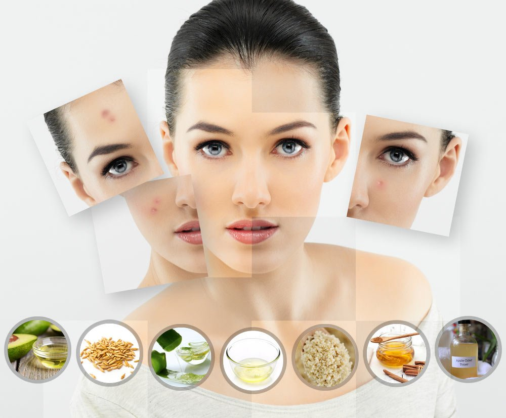 Natural-remedies-for-Acne-According-to-001